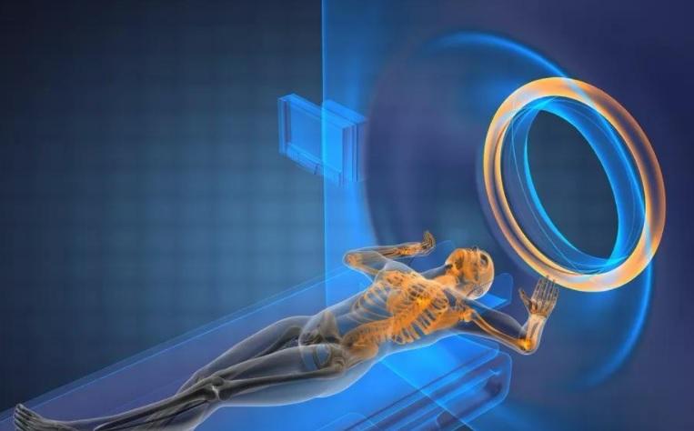 磁共振引导放射治疗系统介绍